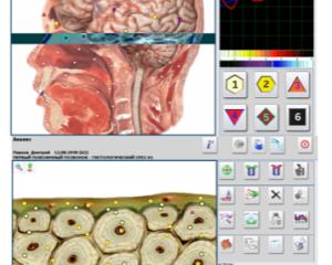 Bioresonans – kroppsscanning med Metatron Hunter